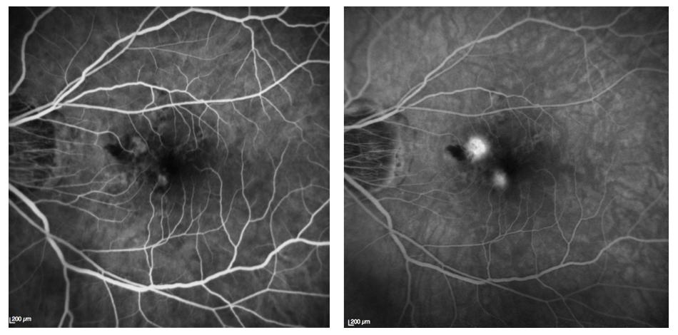 Néovaisseaux du myope fort en angiographie à la fluorescéine