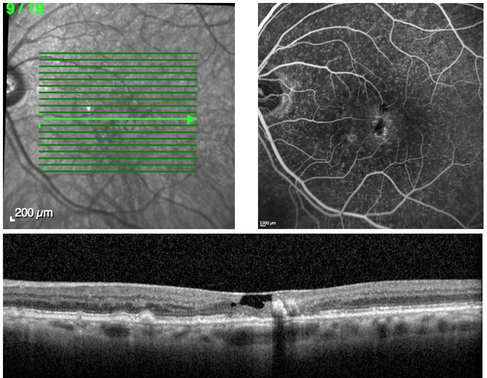 Télangiectasies maculaires et drusen cuticulaires en angiographie à la fluorescéine et en OCT